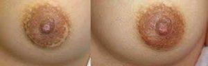 Mastectomia y tatuajes 4