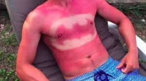 Sunburn Art 1