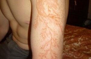 Tatuaje por caida de rayo 1