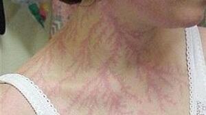 Tatuaje por caida de rayo 2